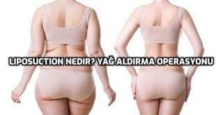 Liposuction Nedir? Yağ Aldırma Ameliyatı